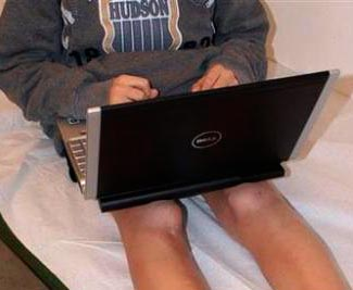 Toasted-leg-syndromeb